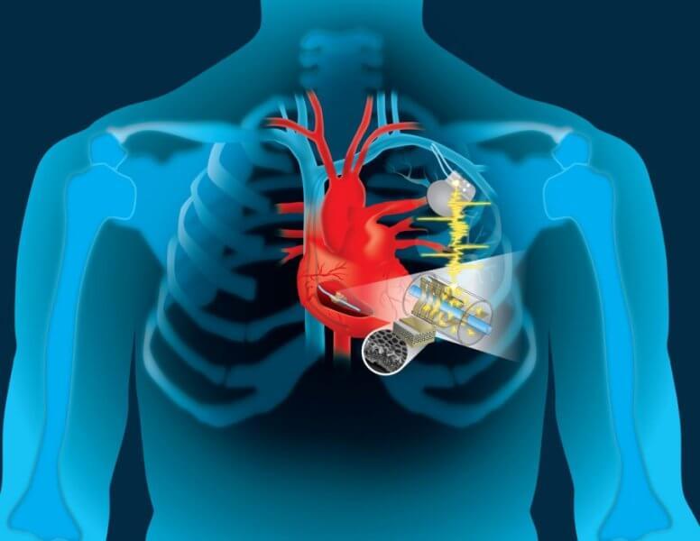 I battiti cardiaci potranno ricaricare i pacemaker che non dovranno più essere sostituiti