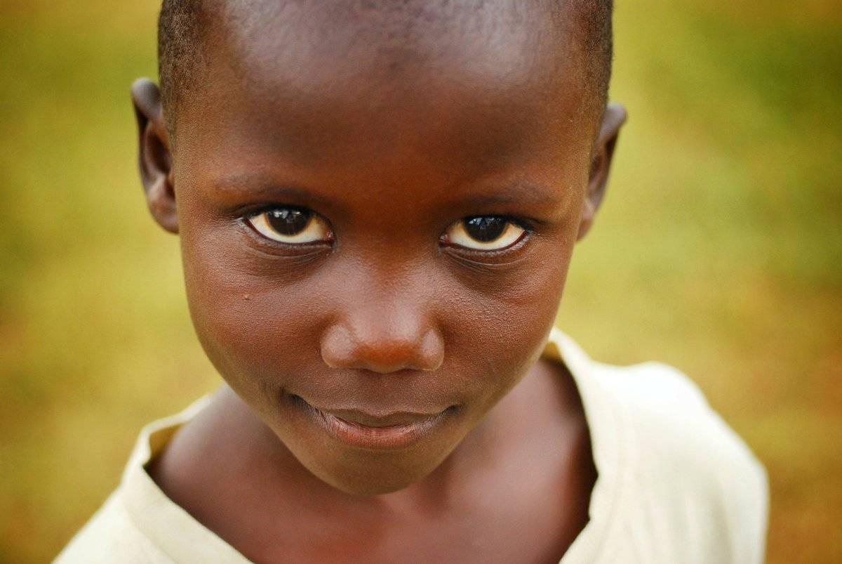 The Life Box: la startup Corax porta in Africa il suo prototipo per salvare i bambini ustionati